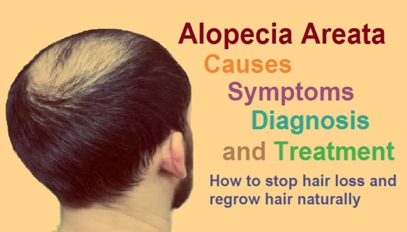 Best treatment for alopecia areata